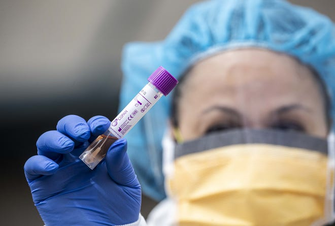 On Thursday morning, there were 58 people in Richland Countyhospitalized for the disease caused by the novel coronavirus, surpassing a record set on Monday.