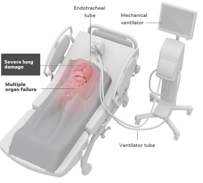 How a mechanical ventilator works.