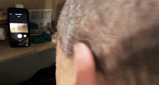 I am holding the camera with one hand and the shaver with the other, viewing the back of my head with the GoPro, which I am monitoring with a smartphone. The challenge here is that there is a delay in what the smartphone is displaying.
