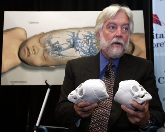 Dr. James Goodrich explains the surgery that separated conjoined twins Clarence and Carl Aguirre at Montefiore Medical Center in the Bronx in 2004. Goodrich died on March 30, 2020, from complications of COVID-19.