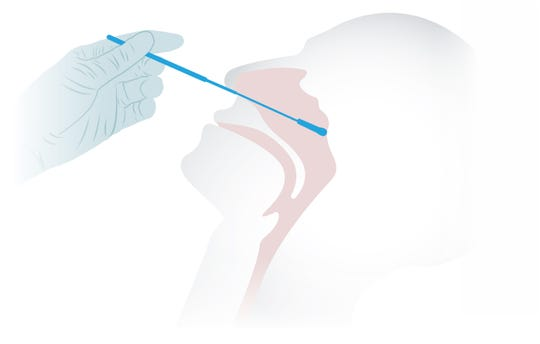 To test of COVID-19, a swab is pushed through a patient's nose until it touches the back of their throat, just above the nasopharynx. After a specimen is collected, the swab is removed and placed in a sterile container so it can be sent off for testing.