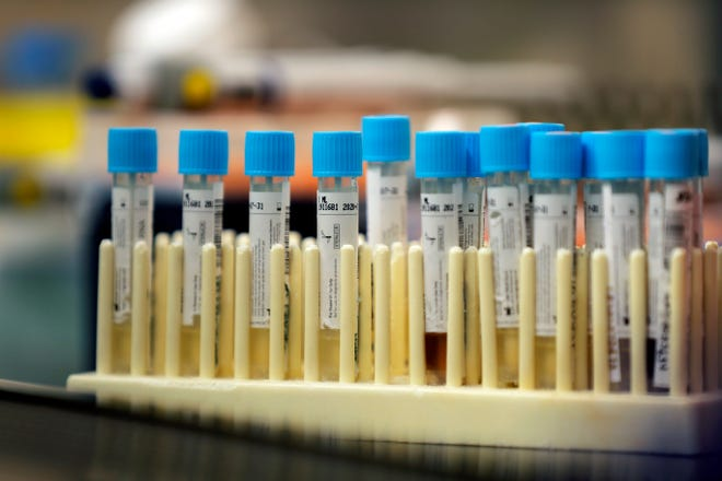 In this April 2, 2020, file photo, vials with samples taken for the new coronavirus are seen before they are prepared for RNA testing at the molecular pathology lab at Tulane University School of Medicine in New Orleans.