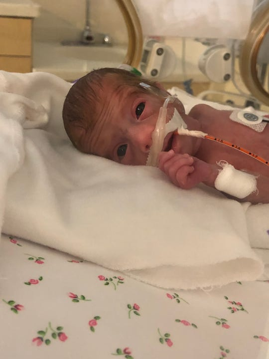 """Micro-preemie Andi Burdine at 22 days old in the neonatal intensive care until. """"I love this pic because it was one of the first time I felt like she was actually seeing me,"""" the baby's mom, News 2 anchor Nikki Burdine, said."""
