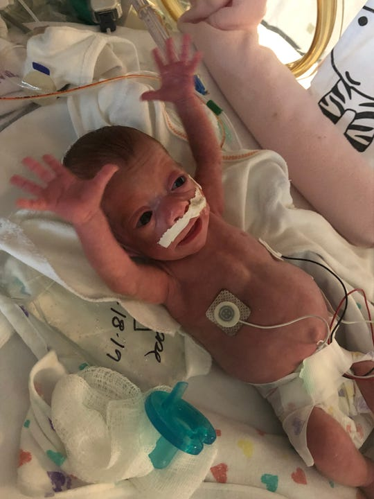 Baby Andi Williams, born three months premature, stretches out in the NICU at nearly 6 weeks old