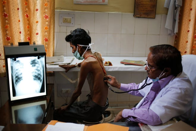 A doctor examines a tuberculosis patient in a government TB hospital in Allahabad, India, on March 24. As the world focuses on the pandemic, experts fear losing ground in the long fight against other infectious diseases like AIDS, tuberculosis and cholera that kill millions every year.