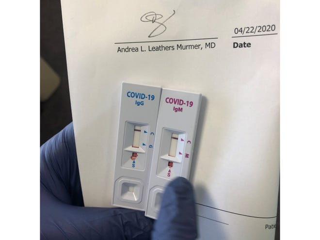A negative COVID-19 antibody test result for an OMNI Health Care patient in Brevard County for both IgG and IgM testing.