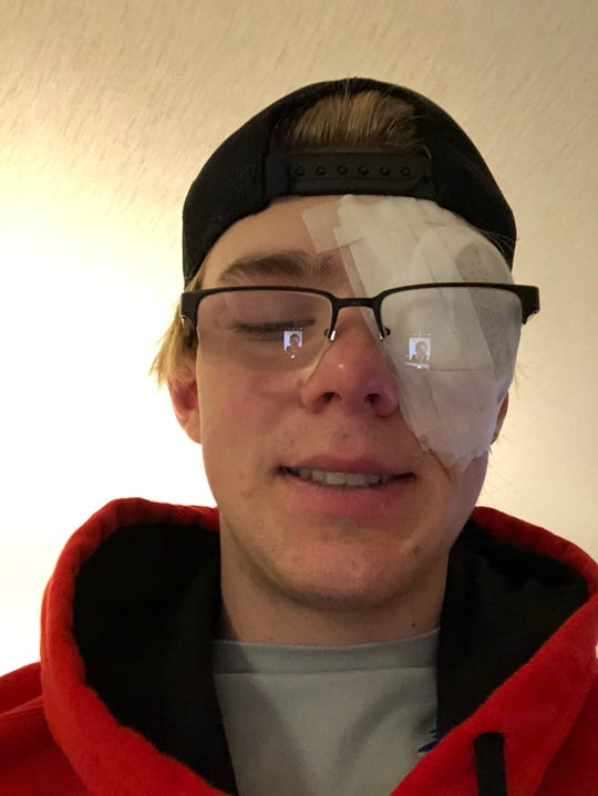 Mysogland underwent surgery to remove a growth on his left eye in April 2019. The procedure made Mysogland miss most of his junior baseball season at Mariemont.