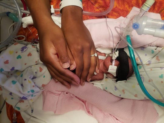 Preemie twin Kalais Morgan checked in at just 1 pound, 7 ounces.