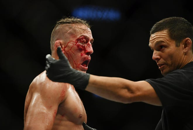 Niko Price (blue gloves) reacts after losing in his fight against Vicente Luque (red gloves) during UFC 249 at VyStar Veterans Memorial Arena.