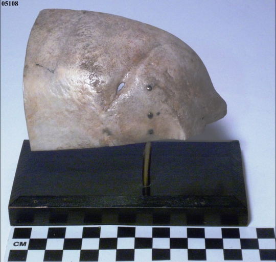 A sailor on board a U.S. vessel during the War of 1812 was injured when he was struck across the head with a sabre. The bones healed, leaving just an indentation behind.