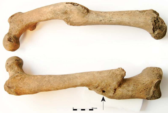 These two femora or upper leg bones of a seaman buried in The Royal Hospital Greenwich London show evidence of being broken and healing incorrectly.