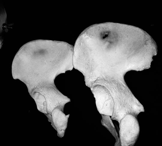 An example of differences between male and female pelves. A female pelvic bone is on the left, a male is on the right.