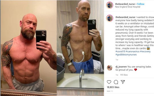 Mike Schultz told BuzzFeed News he was in the hospital for six weeks as he fought the coronavirus and lost at least 50 pounds.