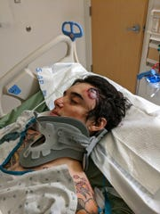 CJ Montano, 24, lies in a hospital bed after getting struck in the head by a rubber bullet at a Los Angeles protest Saturday.