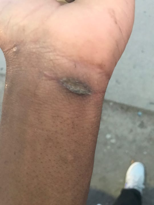 A photo of Damontae Daniels' wrist taken on Wednesday. He was arrested Sunday in an alleyway on his way to his friend's car.