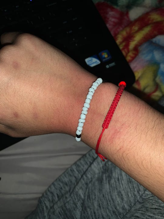 A photo of Yasmeen Ali's wrist taken on Tuesday. She was arrested Saturday night.