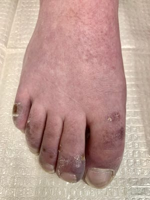 """The condition of """"COVID toes"""" is being studied by Lisa Arkin, an assistant professor of dermatology and pediatrics at the University of Wisconsin School of Medicine and Public Health. Inflamed red and purple toes may be a symptom of COVID-19 in patients who have very mild forms of the disease."""