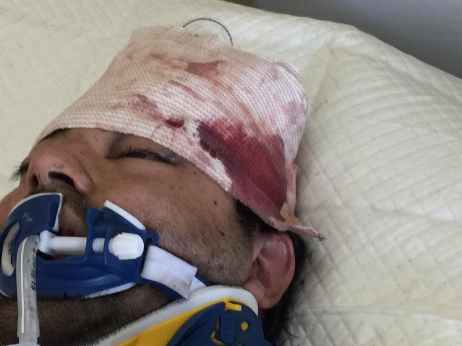 Hector Arreola was hospitalized after his police encounter but removed from life support the next day.