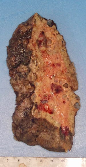 The COVID-19 damaged lung of a patient who received a lung transplant at Northwestern Memorial Hospital in Chicago. The patient is a young Hispanic woman in her 20s.