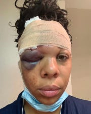 In this Sunday, May 31, 20220 photo provided by LaToya Ratlieff shows LaToya Ratlieff in Delray Beach, Fla., with a swollen eye and head bandaged.