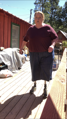 Ronda Phillips, 52, is a double amputee in dire need of new prosthetic legs that she can't afford.