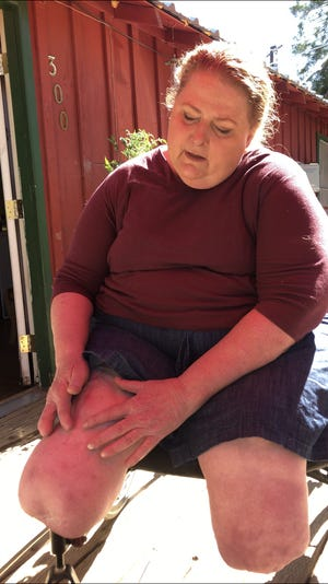 Neighbors and friends of Ronda Phillips, 52,  a double amputee in dire need of new prosthetic legs that she can't afford,  praise her caring nature.