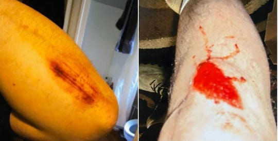 The injuries to John Benyola's arm and leg following an encounter with the Perth Amboy Police Department in June 2015, prompting him to file a police brutality lawsuit.
