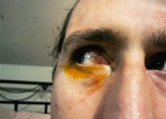 John Benyola's eye after his encounter with the Perth Amboy Police Department in June 2015, prompting him to file a police brutality lawsuit.