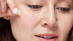 Are pimple patches the magic cure for blemishes?
