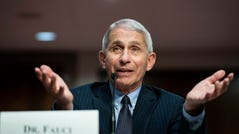 Director of the National Institute of Allergy and Infectious Diseases Dr. Anthony Fauci speaks during a Senate Health, Education, Labor and Pensions Committee hearing on Capitol Hill in Washington, Tuesday, June 30, 2020. (Al Drago/Pool via AP) ORG XMIT: WX482