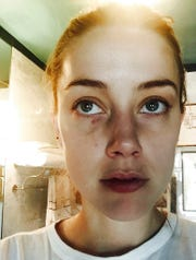 """In this undated photo released by London's High Court, showing Amber Heard displaying injuries said to have been sustained during an incident in which actor Johnny Depp has admitted to """"accidentally"""" head butting her at their Los Angeles penthouse."""