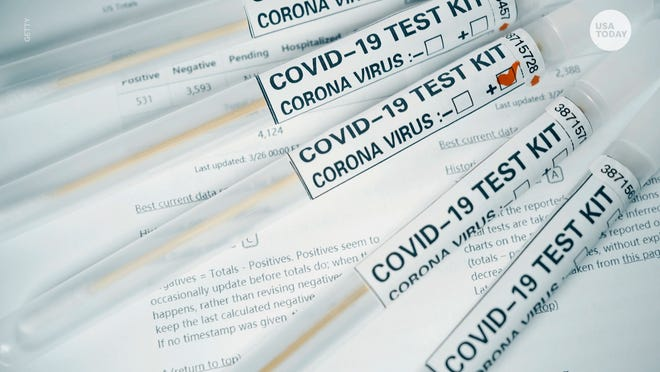 With the lowest number of test results (1,344) in a daily report since Aug. 3 (1,224), Polk reported 122 new cases Sunday, pushing the county's overall total to 15,429. [GETTY IMAGES]