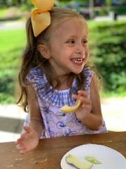 Anne Marie Calligas has a extremely rare condition called Abernethy malformation type 1b, and doesn't have a portal vein from her liver.