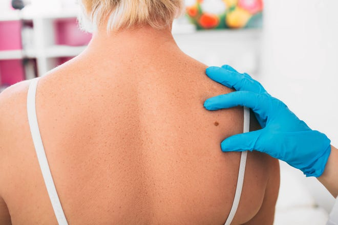 Here's why it's important to schedule your annual skin cancer screening.