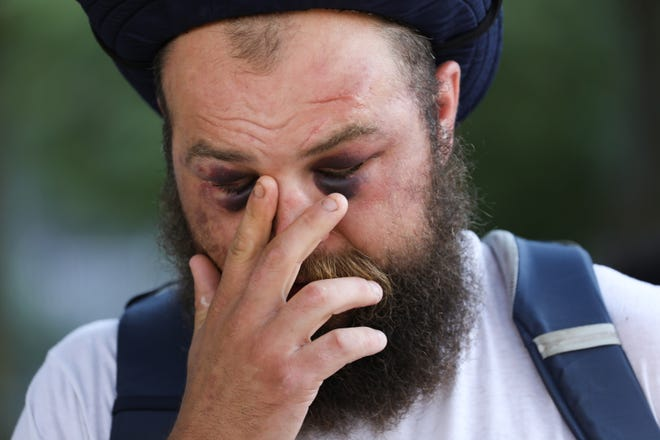 Kevin Kwart, 34, who lives in downtown Detroit, touches his face as he attends a Detroit Will Breathe meeting near the Detroit Police Headquarters on Sunday, August 23, 2020. Kwart, who says he was not participating in protests the night before, was offering protesters a safe space in his apartment when he was tackled by police and injured. He was transported to DMC and later arrested.