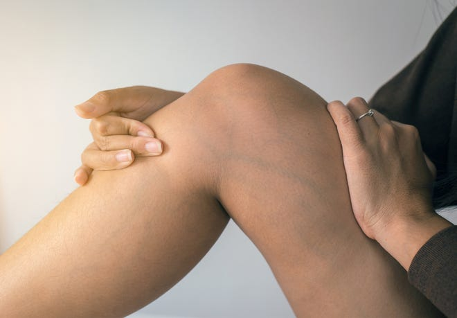 Sometimes the earliest sign of venous disease is swelling (edema) of the legs.