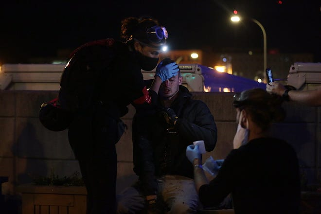 A protester receives care after being struck in the face by a projectile on the Court Street bridge on Friday.
