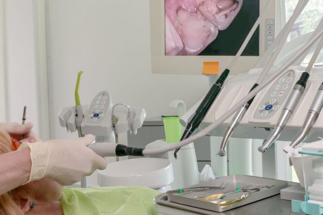 Symptoms often do not dictate when a root canal is needed.