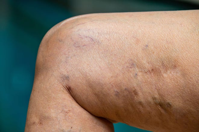 If your vein treatment does not include expert sclerotherapy, you are not receiving comprehensive care.