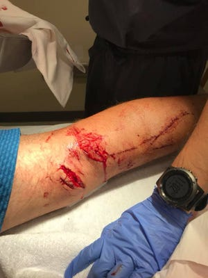 Mark Johnson, 61, of Port St. Lucie was bitten on the back of the knee by an estimated 7-foot long alligator Sept. 13, 2020.