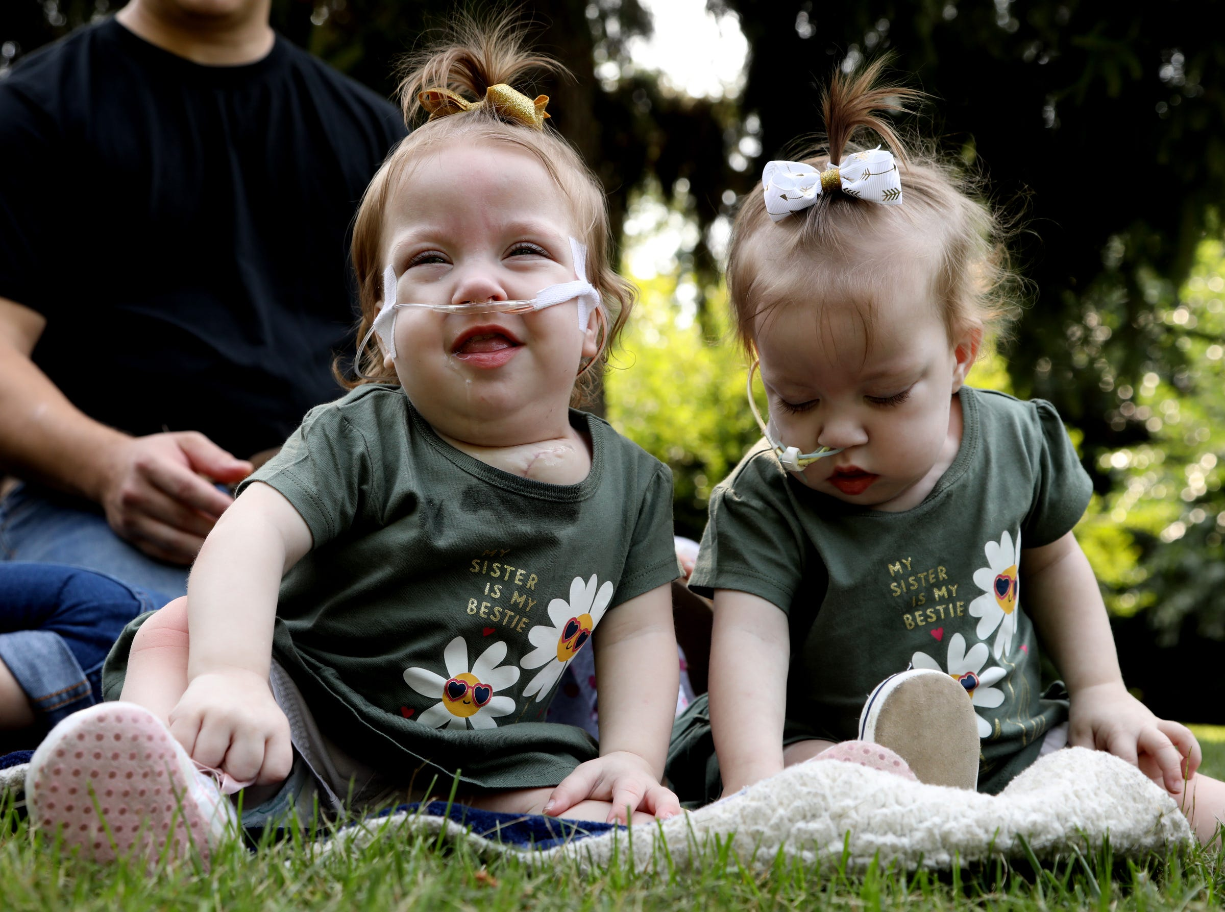 Doctors Separate Conjoined Twins at Michigan Medicine C.S. Mott Children's Hospital