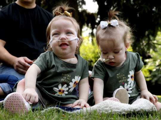 Rare conjoined twins, born locked in embrace, successfully separated in Michigan
