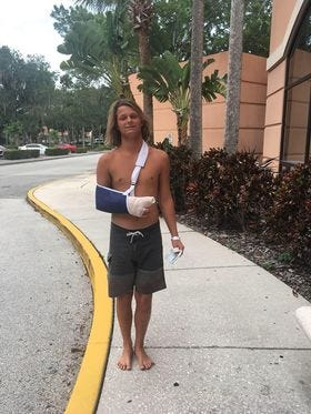 Cole Smyth is shown after being treated for injuries from a shark bite Tuesday in Volusia County.