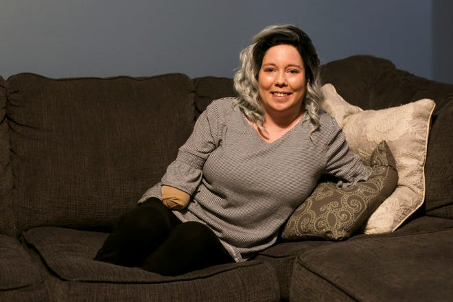 Alix Gerringer sits on the couch of her Lafayette home, Tuesday, Sept. 15, 2020. In February, Gerringer, a nurse at IU Health Arnett, developed sepsis which resulted in quadruple limb loss by amputation.