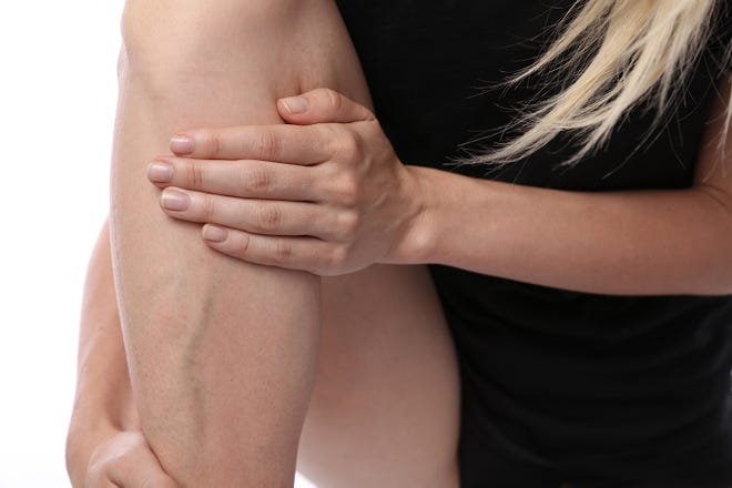 Get varicose veins treated safely.