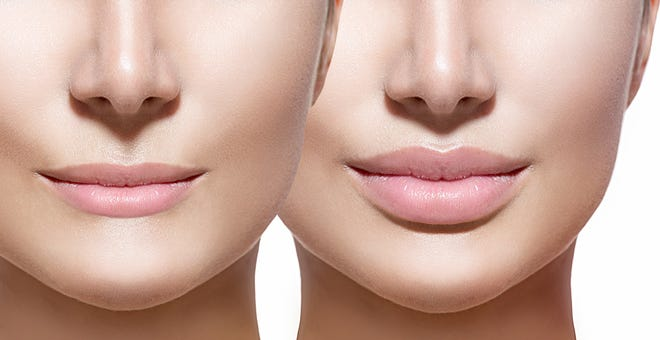 Restylane Kysse, the first hyaluronic acid lip filler with XpresHAn Technology.