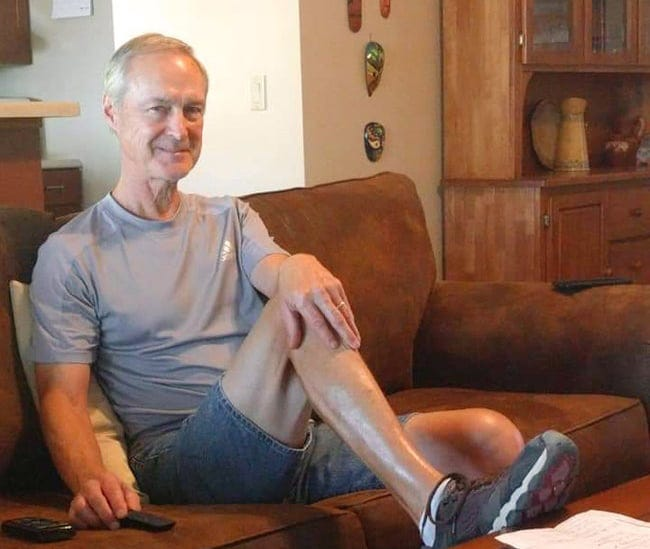 Scott Torgeson survived a wildfire in the Little North Santiam Canyon but was badly burned in the process.