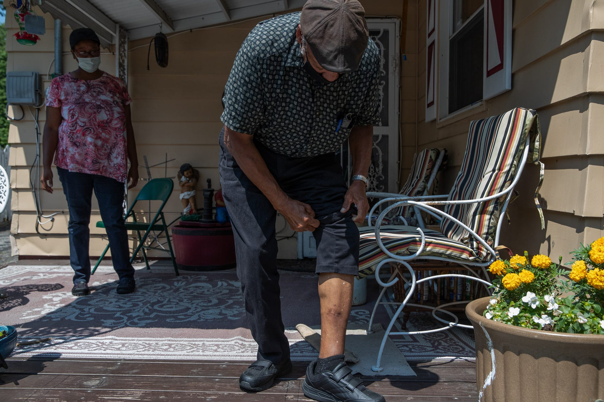 Gordon Mitchum Sr., 78, of Indianapolis, a retired mail handler of 43 years, pulls up his left pant leg to show the scars left by an Indianapolis Metropolitan Police Department dog bite, at his home on Monday, July 6, 2020. Mitchum says he was given no waring when an IMPD K-9 officer entered his yard to search for possible suspects in a carjacking after a chase that ended on Mitchum's street.
