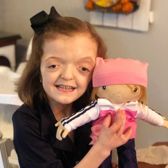 Raegan was born with a rare, genetic disorder called Apert syndrome.