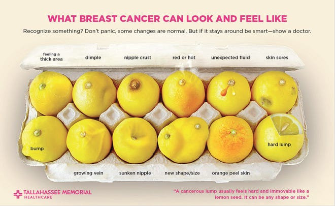 Breast cancer awareness: Tips on what to watch for and report to doctor.